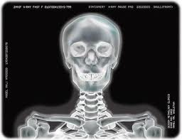 Medical X-Ray Silver Film Image